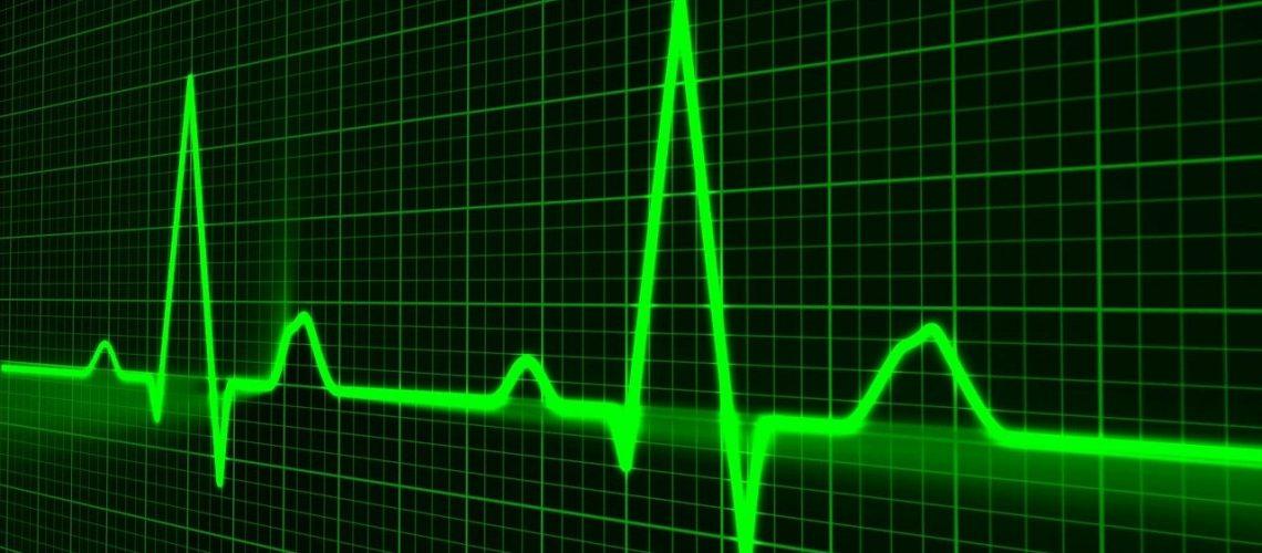 pulse-trace-163708_1280